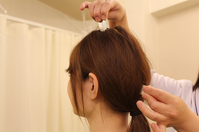 頭蓋骨の施術の解消 写真